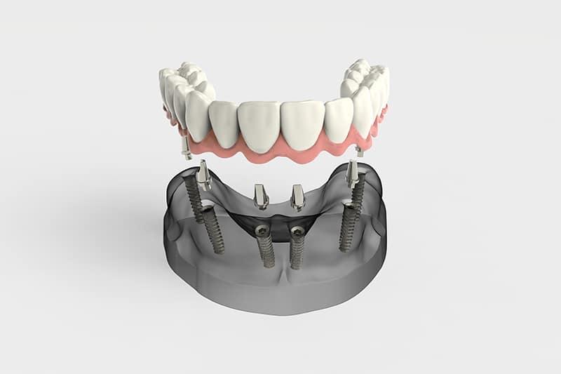 all on 4 dental implants gilbert AZ
