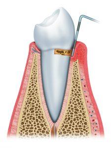 Gingivitis - Periodontal Treatment Phoenix AZ