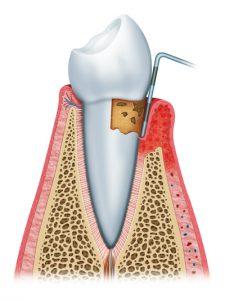 Periodontitis - Gum Disease Treatment Gilbert AZ