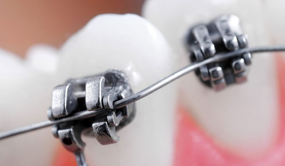 Hygiene Tips For Braces Care