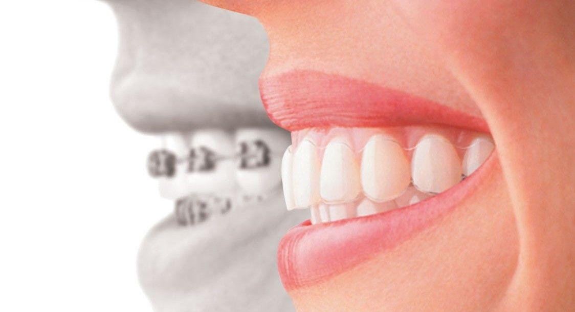 Dental Crown Versus Dental Implant