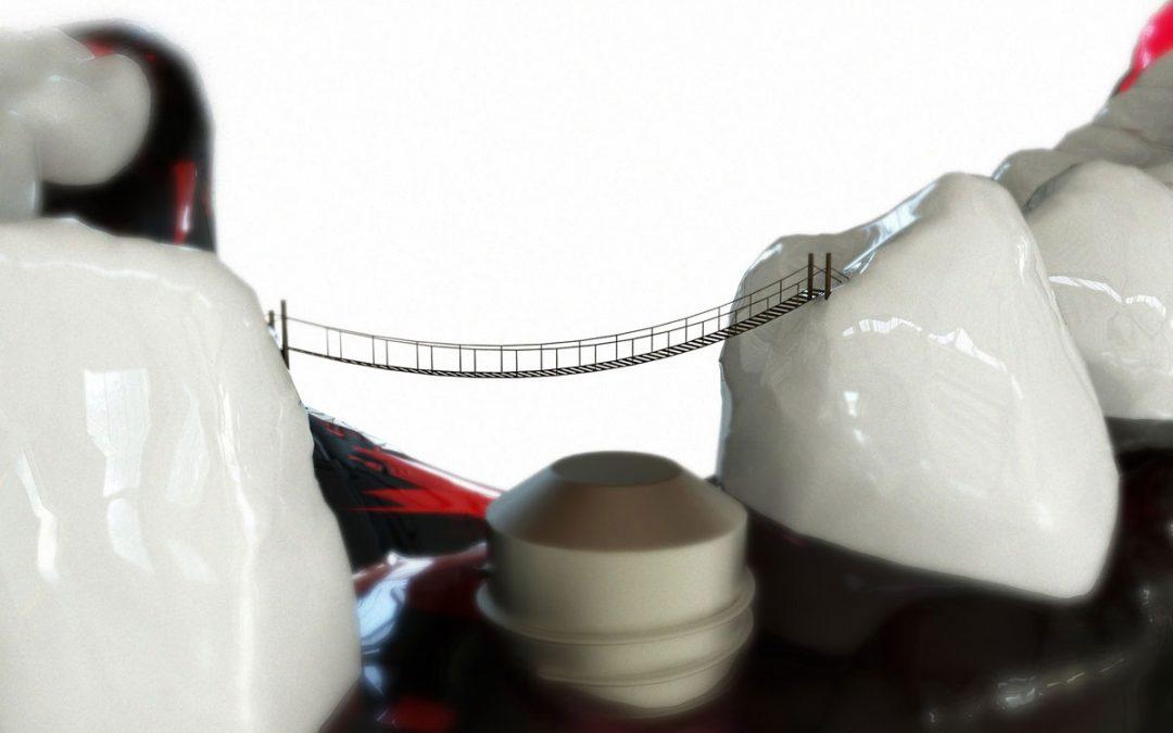 Dental Bridge or Dental Implant: Which One?