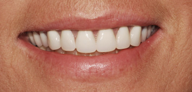 Implant Denture After