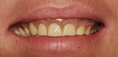 Implant Denture Before