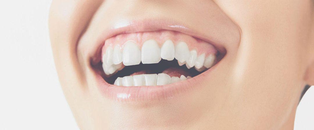 5 Common Misconceptions About Gum Disease
