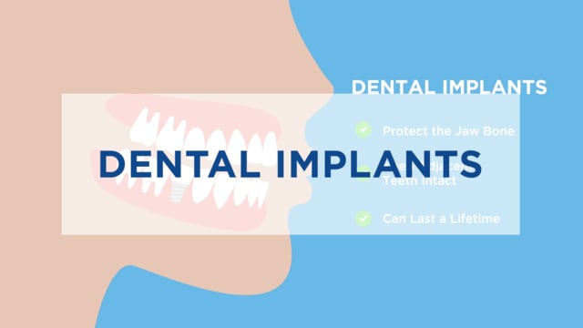 Implants Animated 2