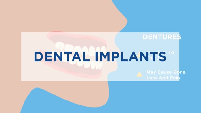 Implants Animated 3