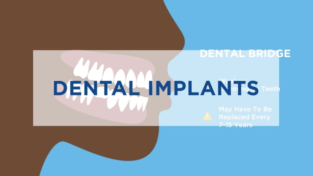 Implants Animated 4