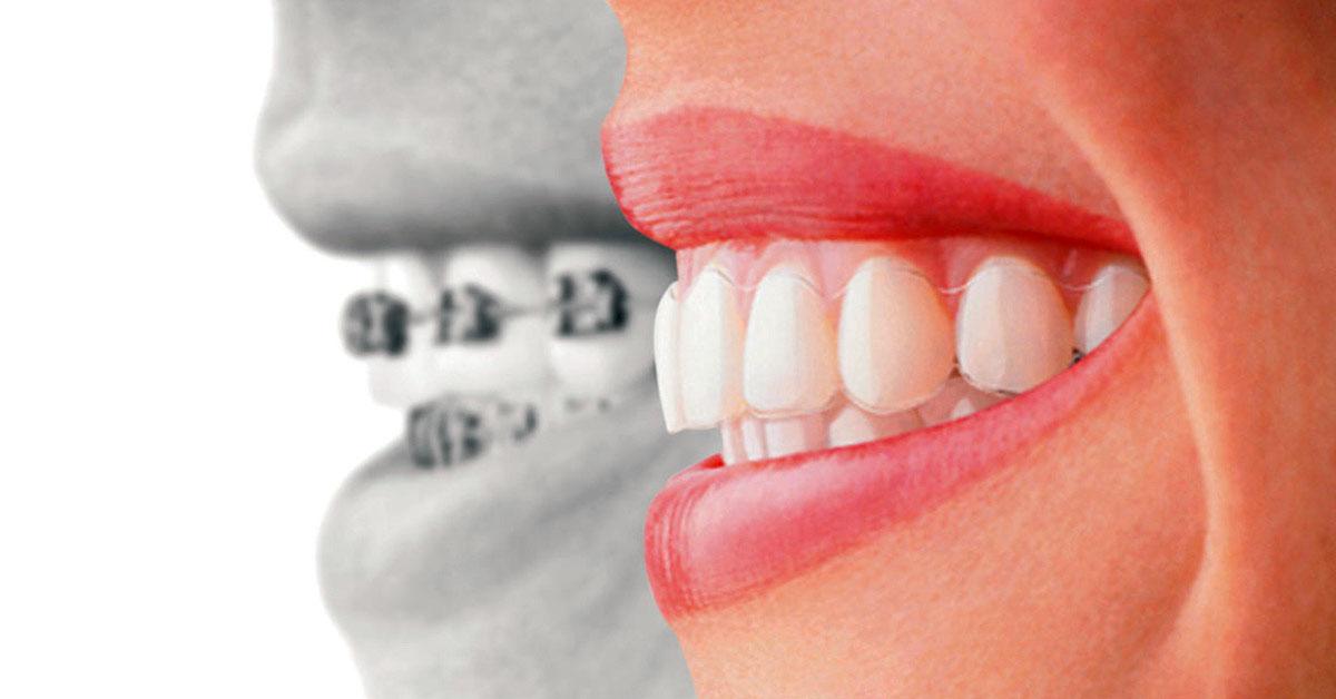 Orthodontist Invisalign