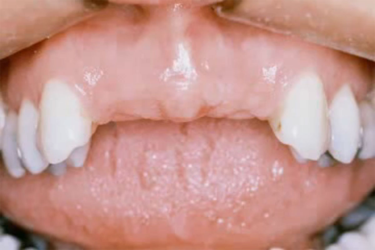 Prosthodontist Video