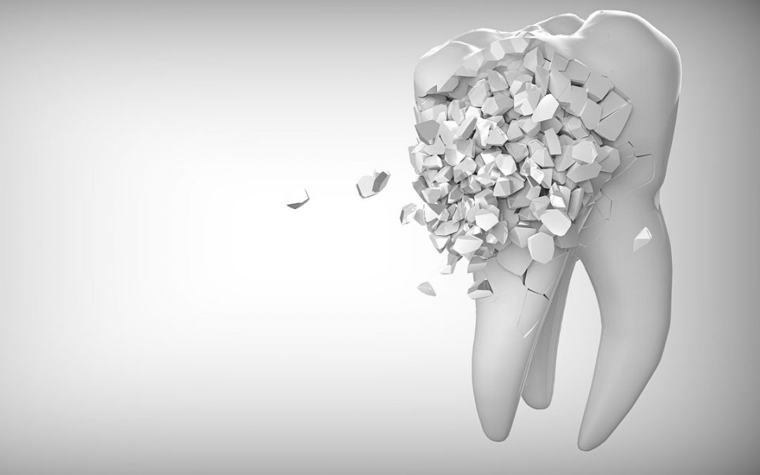8 Common Reasons For Needing A Tooth Pulled